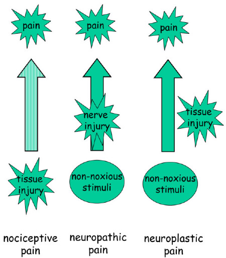 Pain Neuroplasticity, chronic pain relief clinic